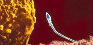 Астенозооспермия что значит