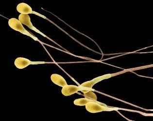 Причины агглютинации сперматозоидов, методы диагностики и лечения патологии